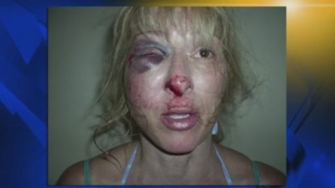 Christina West, after police beating